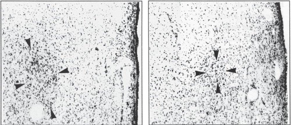 Влияние развития мозга на сексуальную ориентацию и пол - 3
