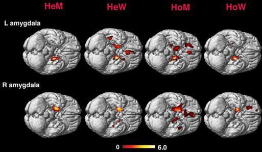 Влияние развития мозга на сексуальную ориентацию и пол - 4