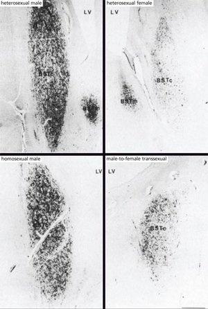 Влияние развития мозга на сексуальную ориентацию и пол - 5