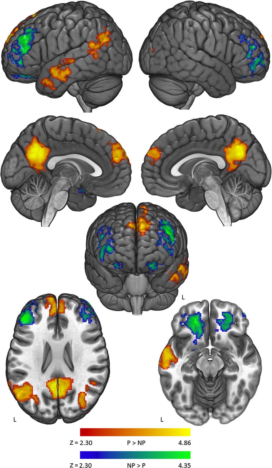 Иллюзии мозга. Эффект обратного действия с точки зрения нейробиологии - 3