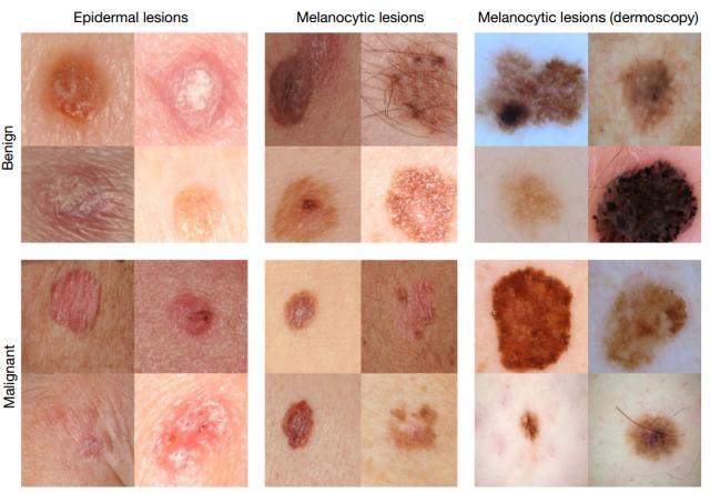 Алгоритм глубинного обучения диагностирует рак кожи не хуже квалифицированного дерматолога - 2