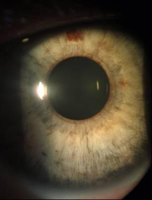 «Аугментация» глаза: что мы встраиваем в него сегодня, и под что ещё останется место - 14