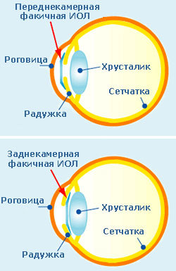 «Аугментация» глаза: что мы встраиваем в него сегодня, и под что ещё останется место - 3
