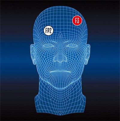 Может ли электростимуляция мозга заменить антидепрессанты и помочь от стресса? - 2