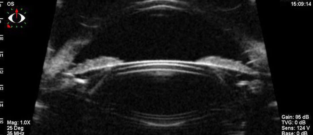Расчёт интраокулярных факичных линз (встраиваемых в глаз) – продолжаем про глаз и его биомеханику - 3