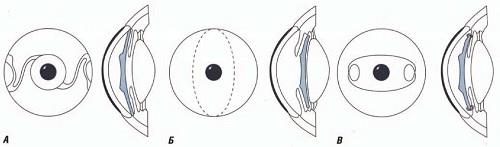 Расчёт интраокулярных факичных линз (встраиваемых в глаз) – продолжаем про глаз и его биомеханику - 1