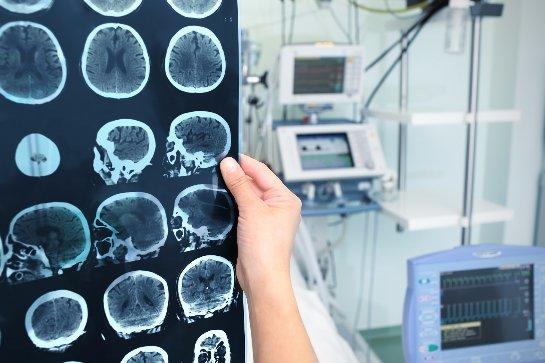 Ученые просят депрессивных людей завещать свой мозг науке