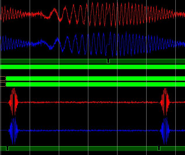 Реализация узла БПФ с плавающей точкой на ПЛИС - 20