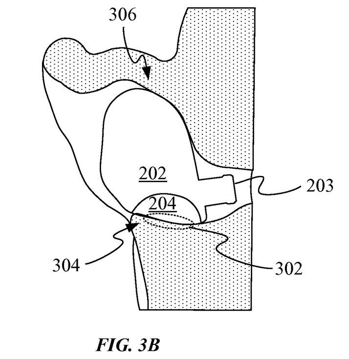 Биометрический датчик в наушнике будет касаться козелка