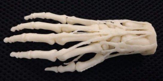 Американские госпитали начнут печатать протезы на 3D-принтерах