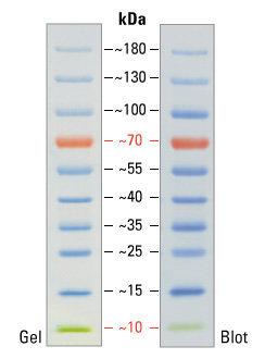 Генная инженерия бактерий: как достать из бактерий нужный нам белок - 4
