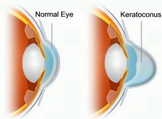 Кератоэктазия (кератоконус, «выпуклая роговица»): что это и что с этим делать - 1