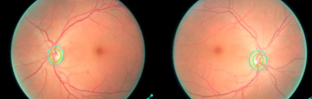 Глубокое обучение и нейронные сети позволяют идентифицировать диабетическую ретинопатию с точностью в 86% - 1