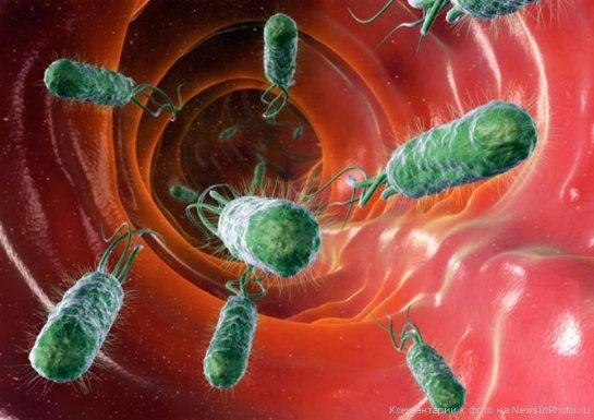 Инсульт может вызываться кишечными бактериями
