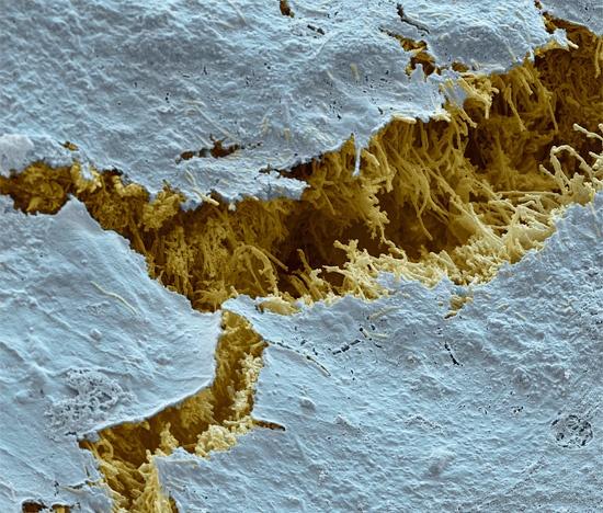 Кариес, электронная микроскопия