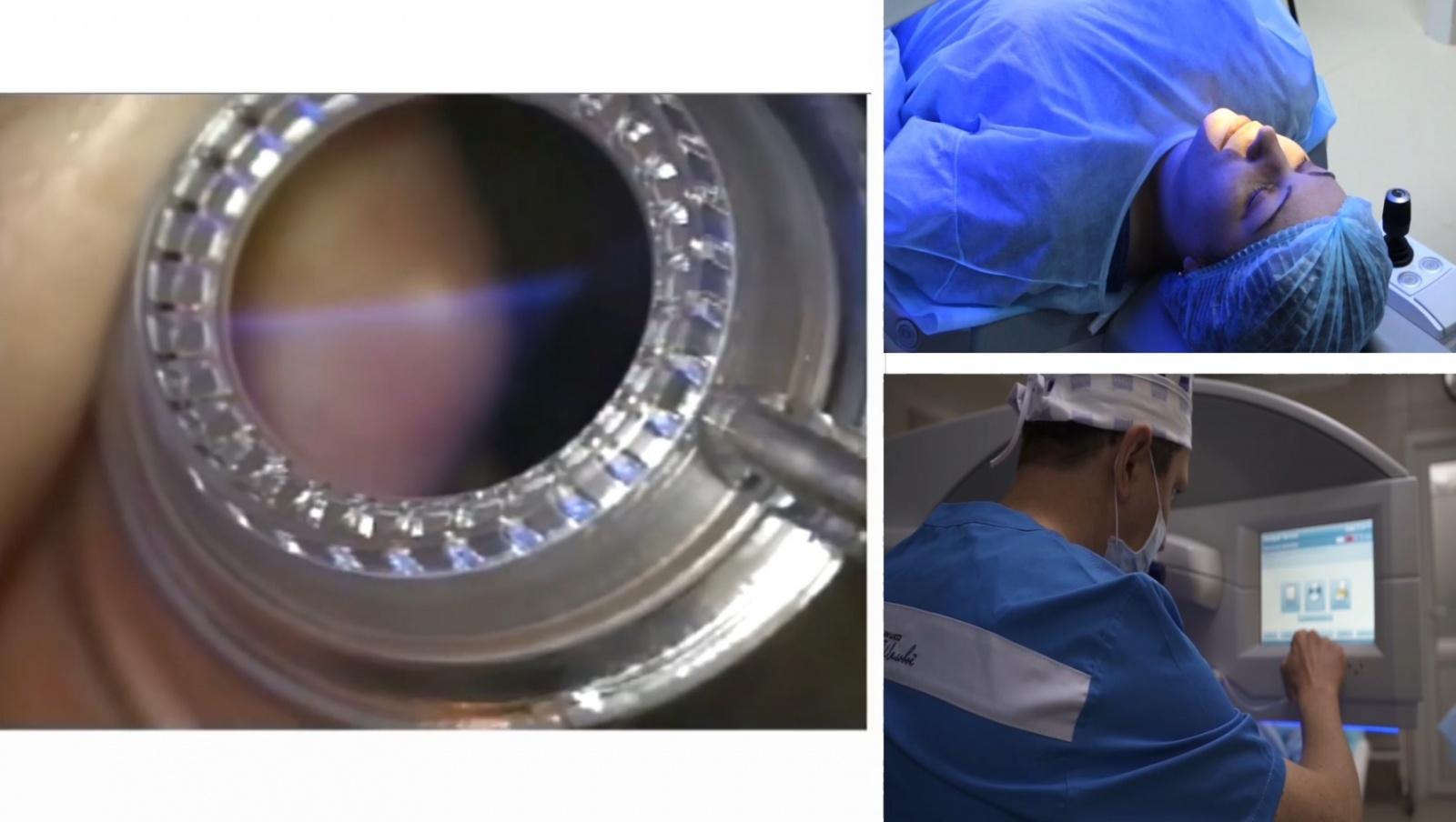 Как врачи делают коррекцию зрения сами себе - 1
