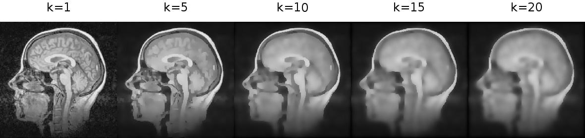 Сглаживание изображений фильтром анизотропной диффузии Перона и Малика - 11