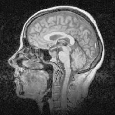 Сглаживание изображений фильтром анизотропной диффузии Перона и Малика - 6