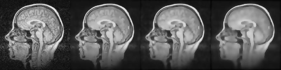 Сглаживание изображений фильтром анизотропной диффузии Перона и Малика - 1