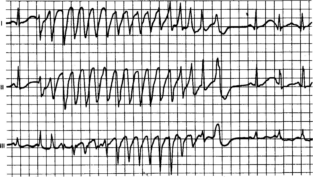 Нейросети диагностируют проблемы с сердцем более точно, чем врачи - 2