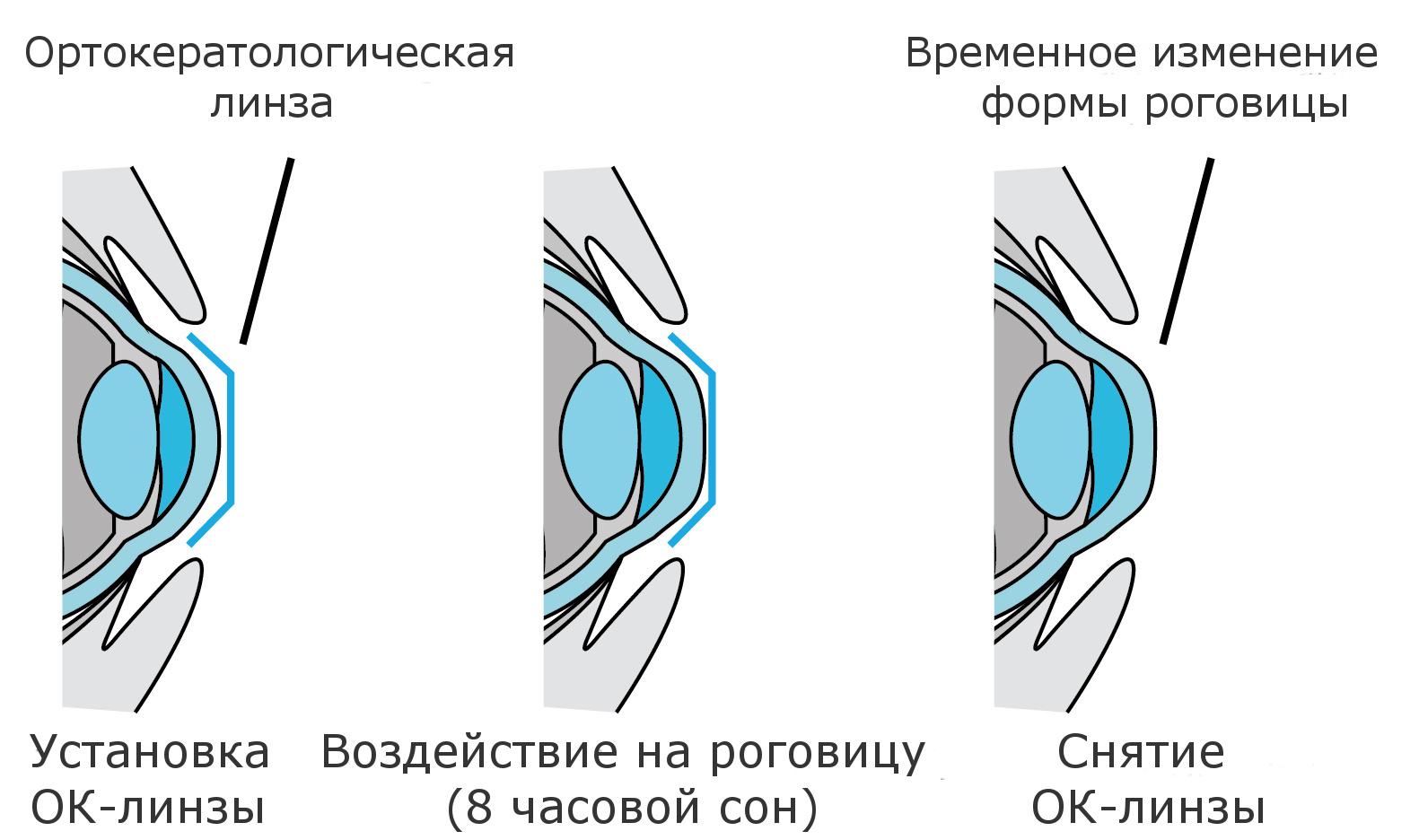 Ночные контактные линзы для тех, кто не носит очки, но боится при этом коррекции - 2