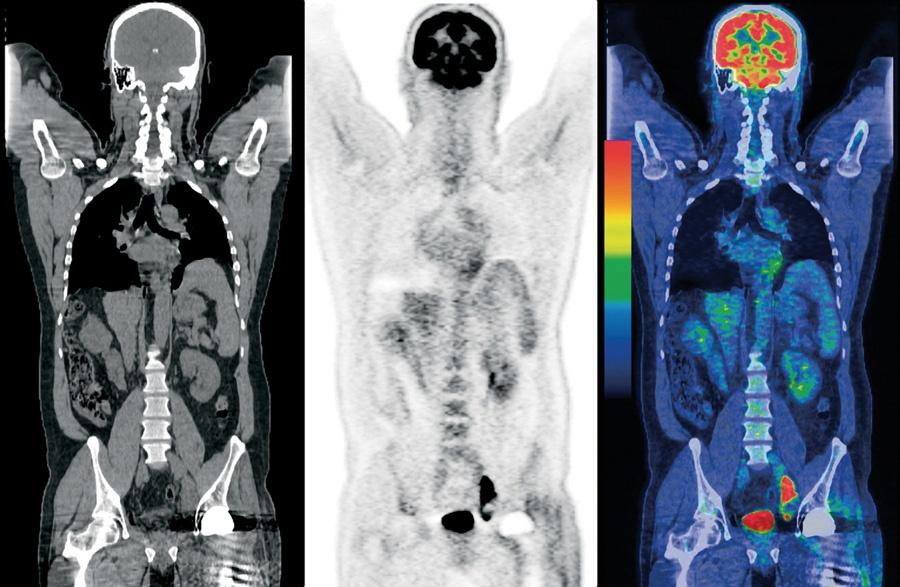 Диагностировать рак помогает позитрон - 5