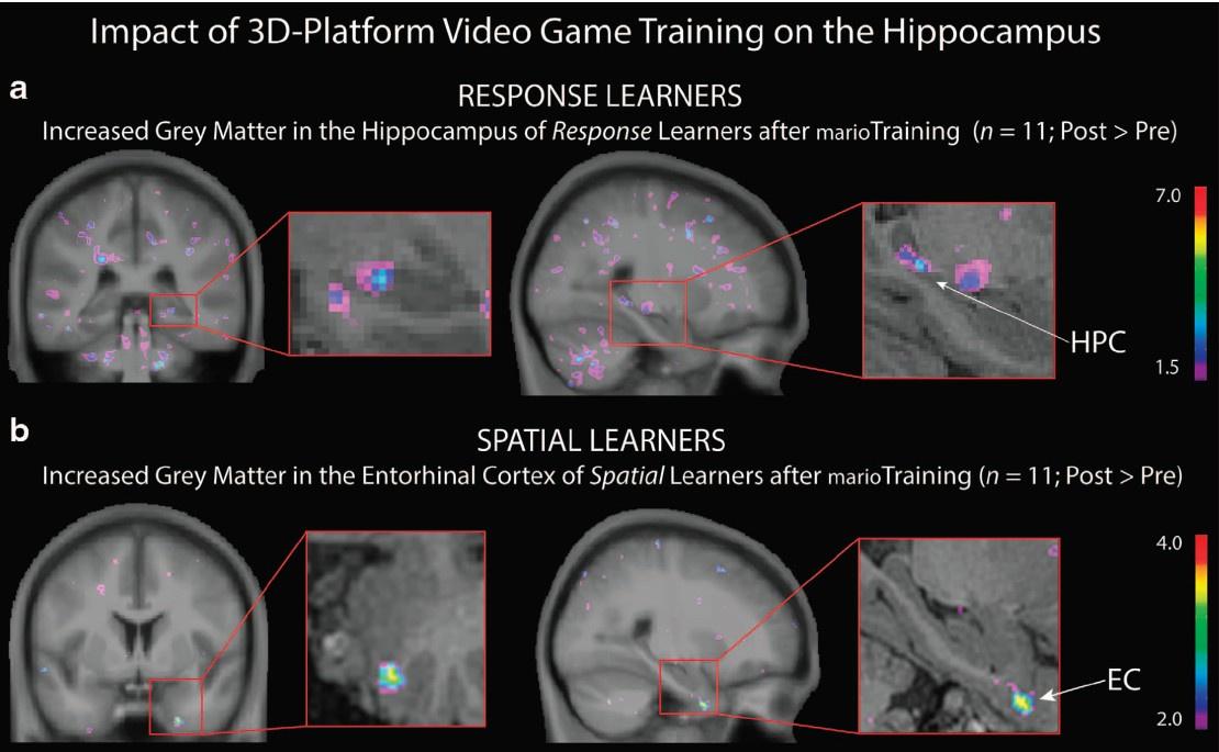 Компьютерные игры влияют на количество серого вещества в гиппокампе - 2