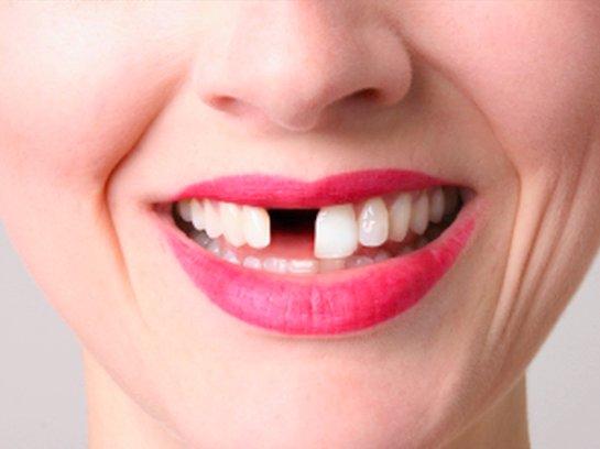 Ученые рассказали, какие продукты портят зубы