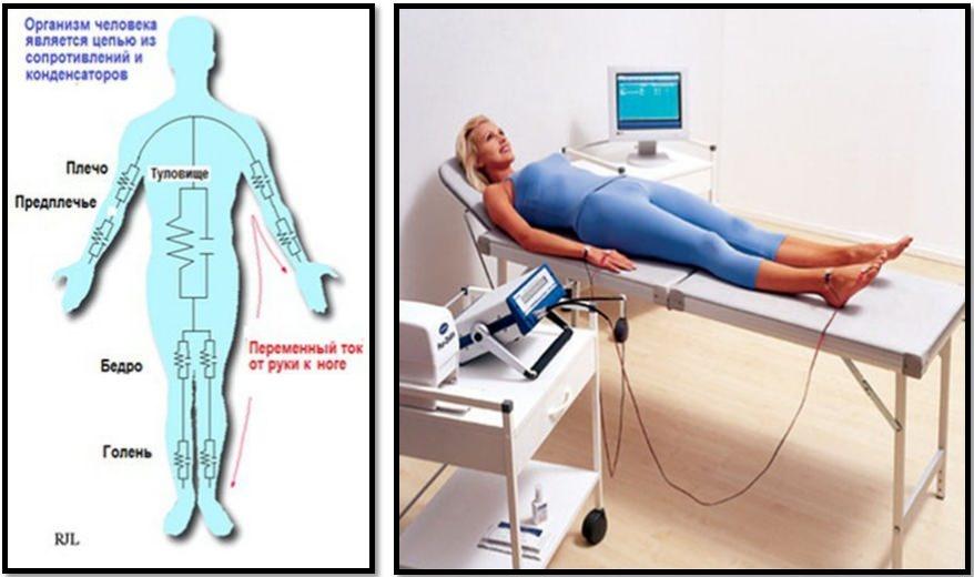 Весы-анализатор MGB Body fat scale — сравнительный «клинический» тест в ЦКБ РЖД - 2