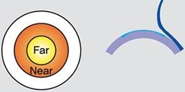 Пресбиопия: «климакс» глаз у мужчин и женщин - 3