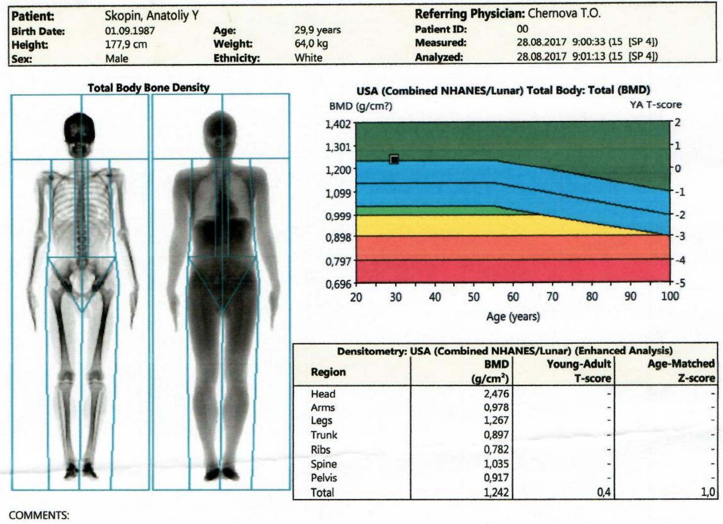 Как измерить уровень жира: биоимпеданс vs на глазок vs DEXA (Денситометрия) - 7