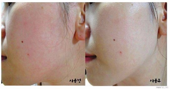 Осветляющие крема вредны для кожи