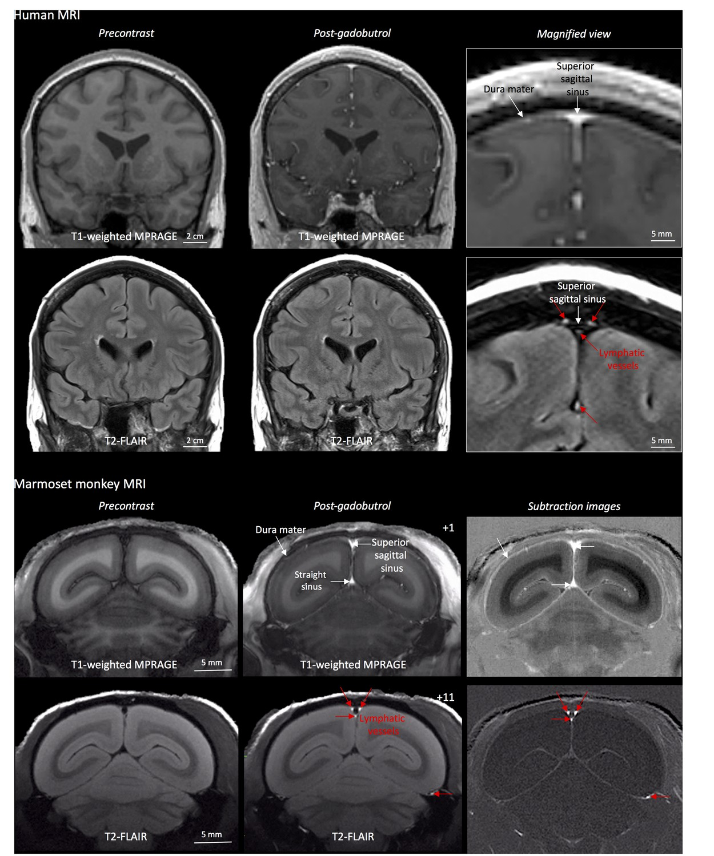 В человеческом мозге нашли лимфатическую систему для удаления отходов - 3
