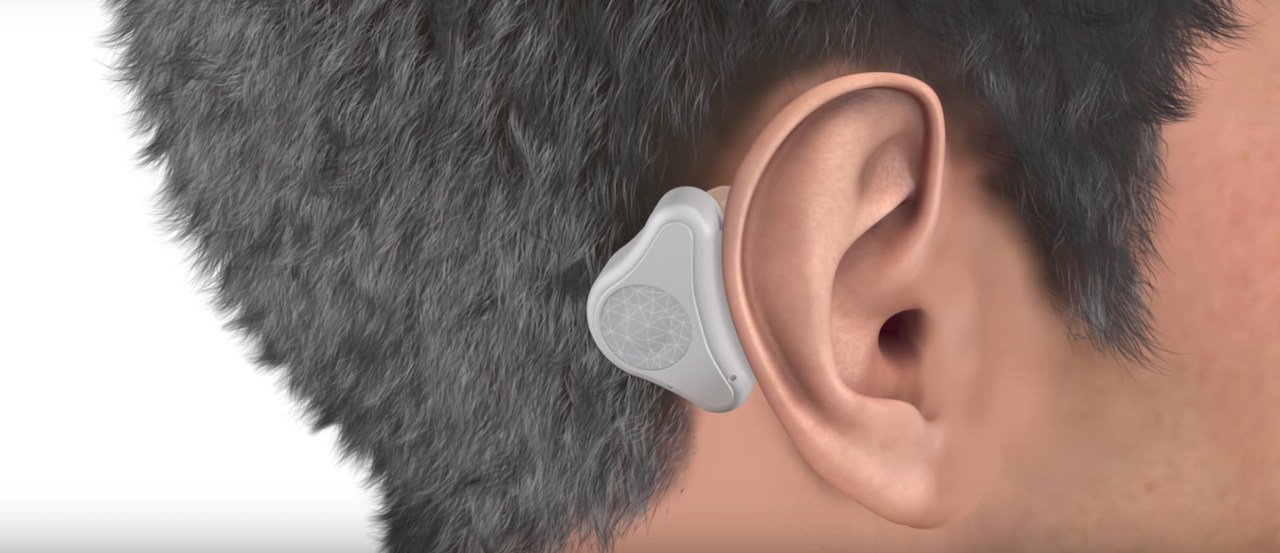 ADHEAR — еще один безопасный слуховой аппарат на базе костной проводимости звука - 3