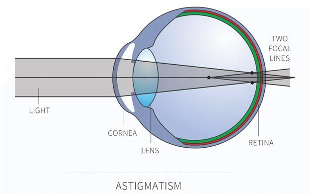 Что такое астигматизм