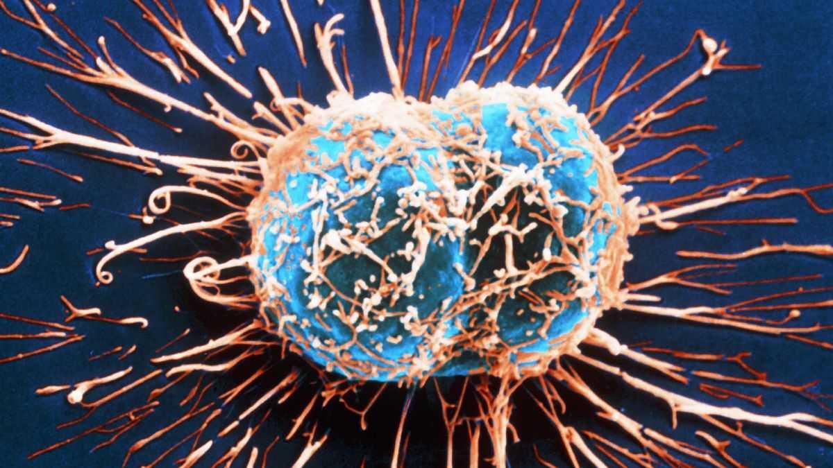 Раковые клетки получают энергию для бурного роста при расщеплении сахара - 1