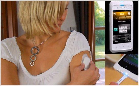 Уровень инсулина можно измерять через смартфон