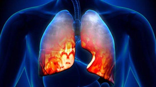 Новая вакцина против пневмонии защитит от более чем 70 штаммов заболевания