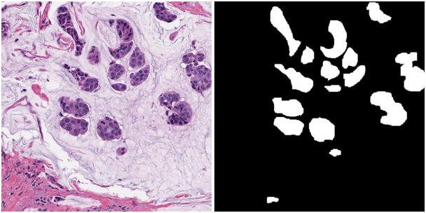 Конкурс Topcoder «Konica-Minolta Pathological Image Segmentation Challenge». Заметки участника - 2