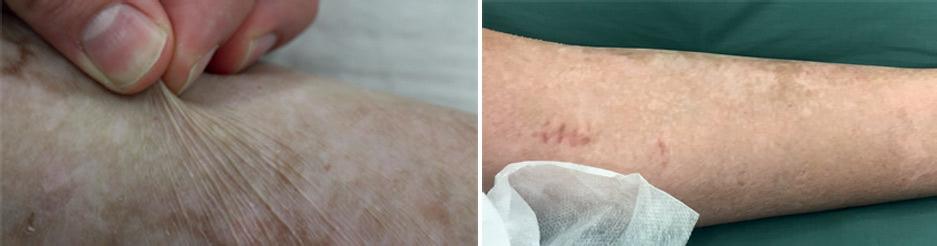 Немецкие врачи вырастили трансгенную кожу для 80% тела ребёнка - 1