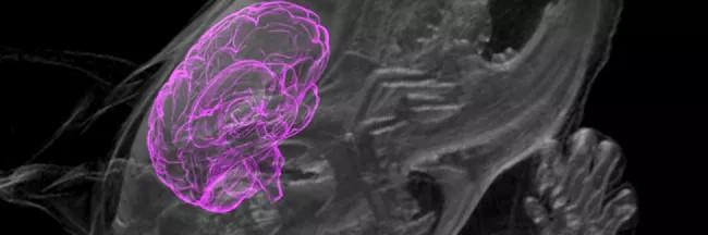 Органоиды мозга человека вживили в мозг живой крысы - 1