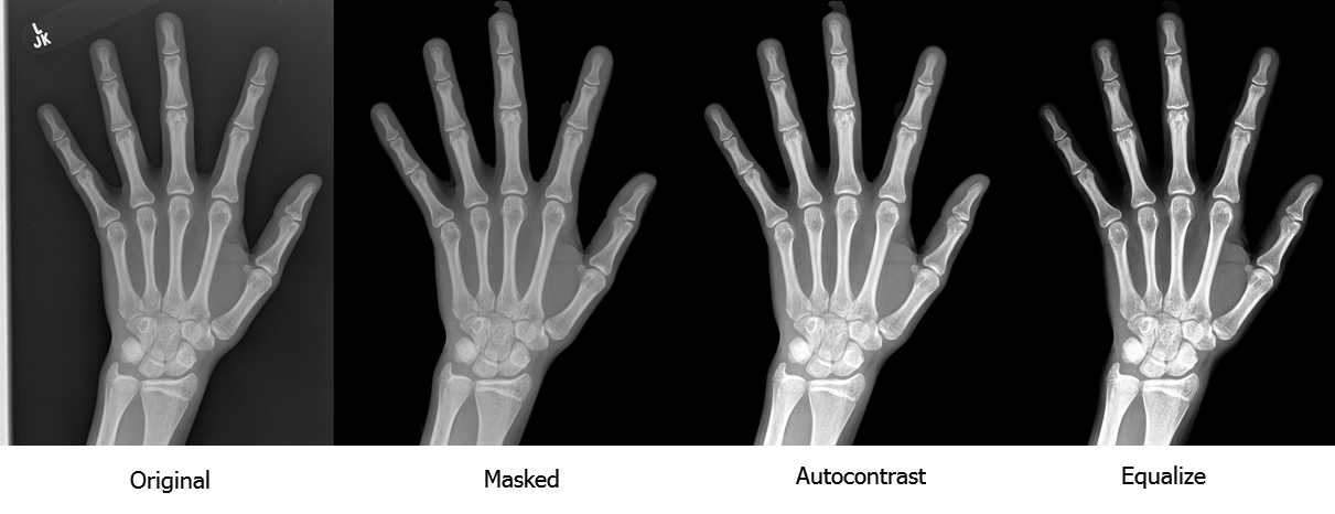 Pediatric Bone Age Challenge. Deep Learning и много, много костей - 4