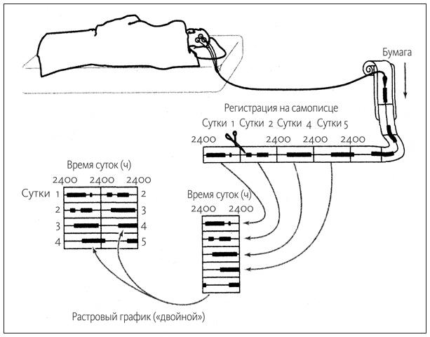 «Флюгегехаймен» или изучение циркадных ритмов через терморектальное зондирование - 2