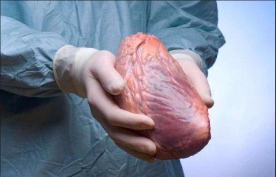 По этическим причинам пересадку сердца могут перестать проводить