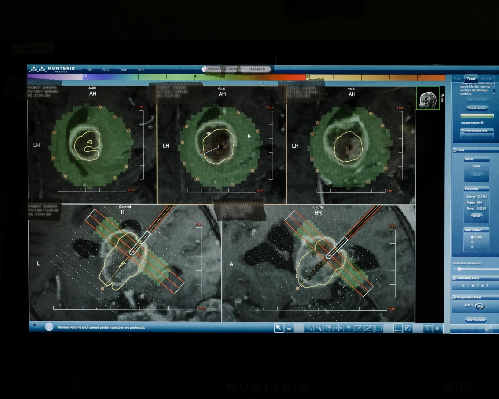 Хирург, собирающийся подключить вас к интернету через мозговой имплантат - 9