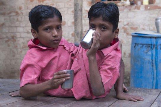 В Индии были разделены сиамские близнецы