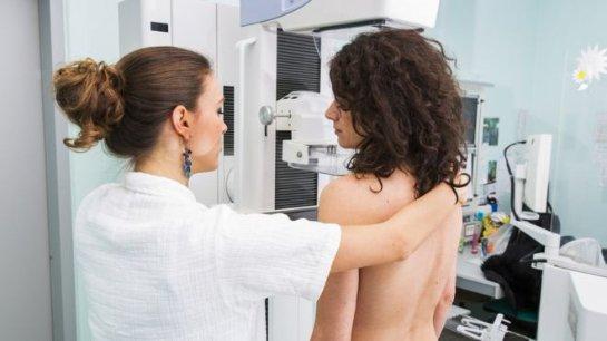 Ген BRCA не влияет на выживаемость после рака молочной железы