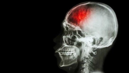 Стволовые клетки помогают уничтожить повреждение головного мозга у жертв инсульта