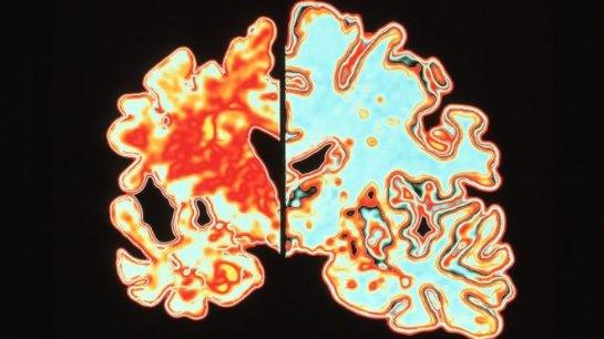 Исследователи болезни Альцгеймера получили премию за прорыв