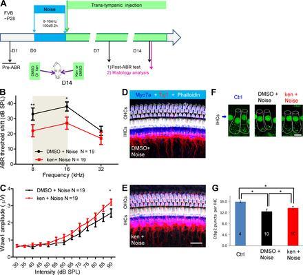Ингибиторы CDK2 могут помочь предотвратить потерю слуха - 1